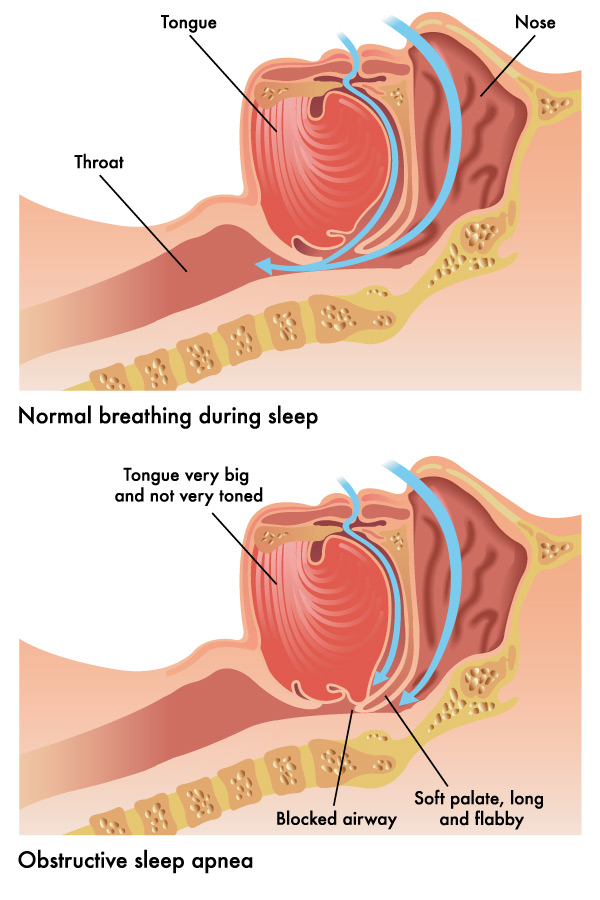How sleep apnea occurs