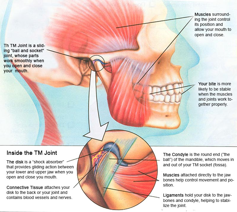 TMJ - strained jaw muscles and joints