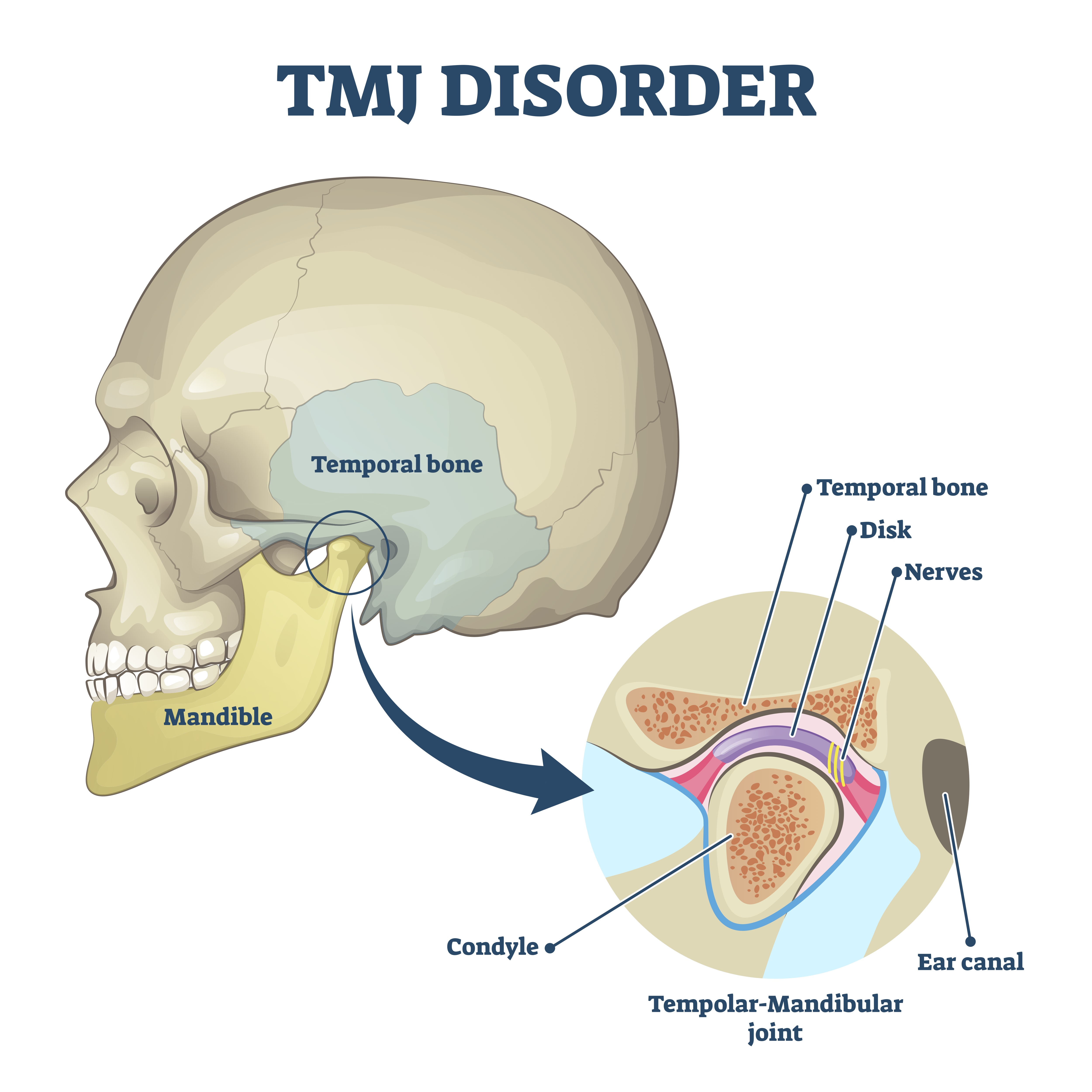 Diagram of a skull indicating the TMJ joint - TMJ Disorders